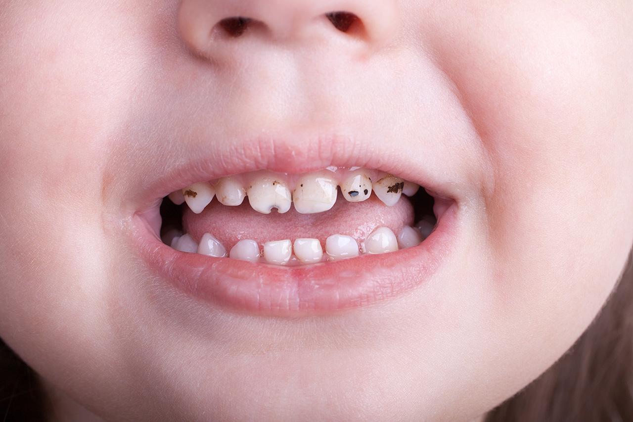 cavities in baby