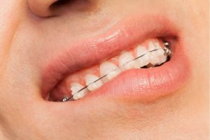 man wondering why do braces hurt