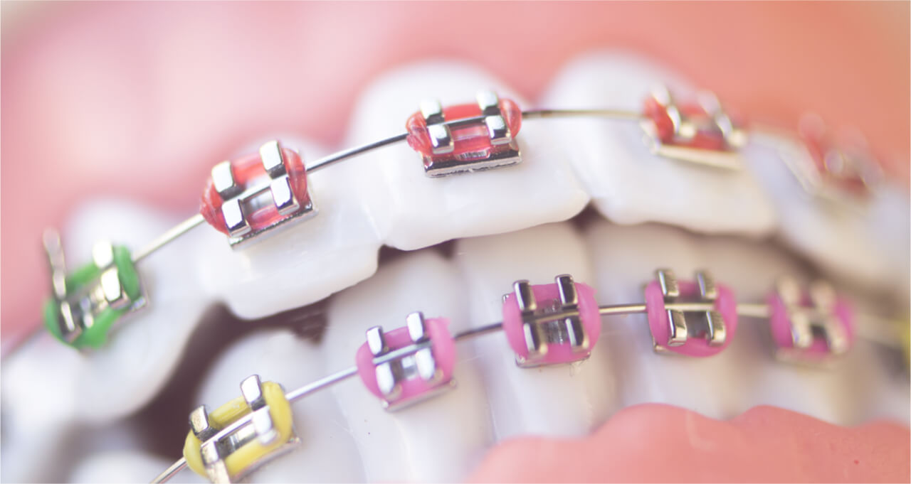 there are many different types of braces