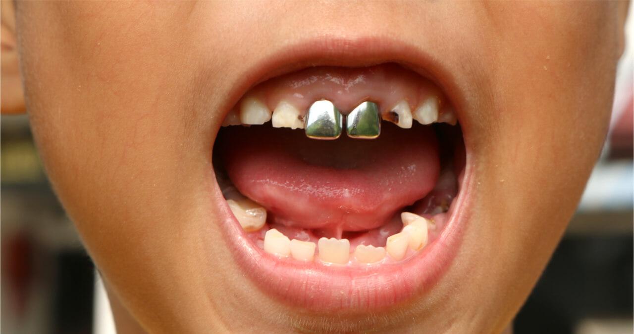silver teeth on a child