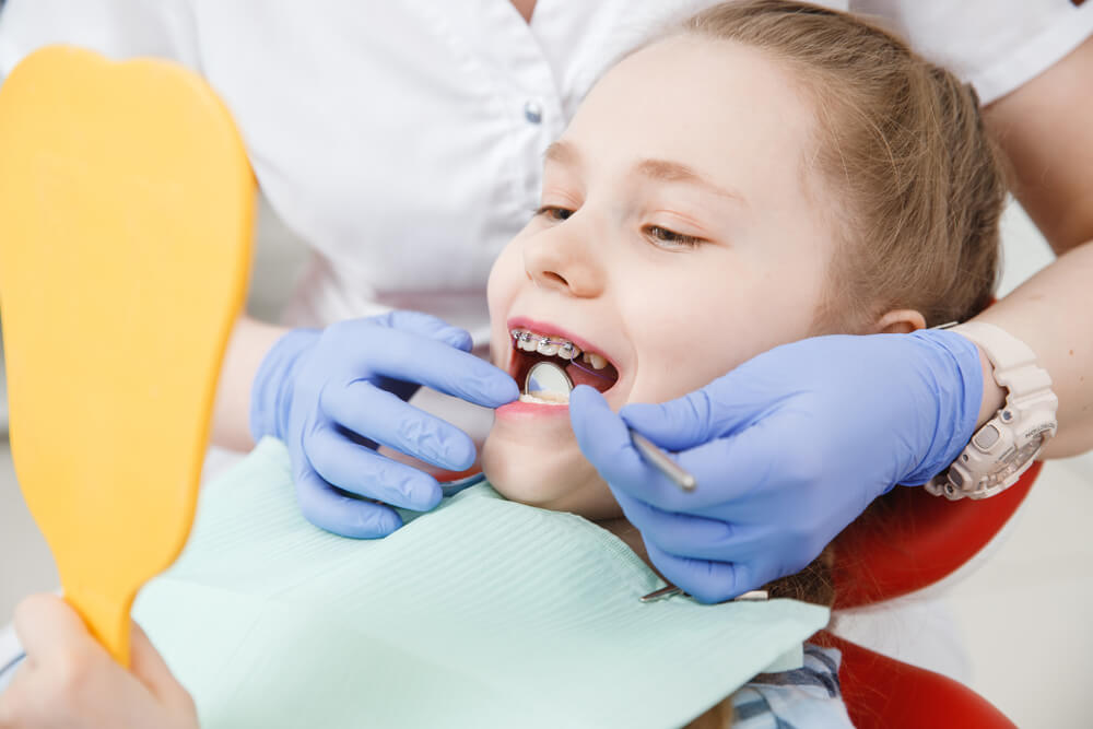 braces costs for kids