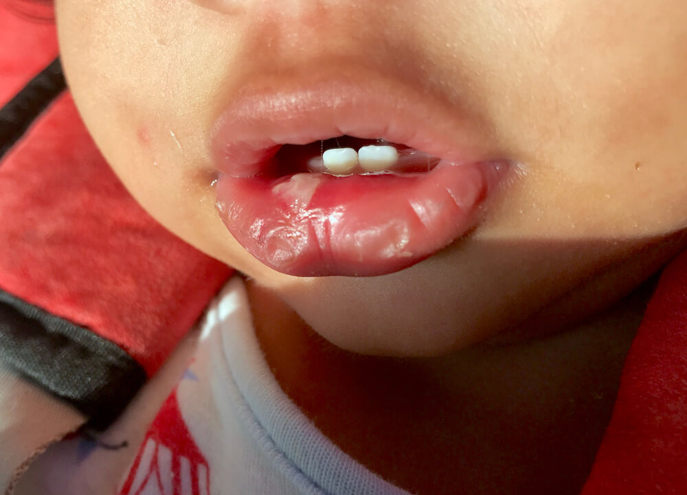 baby canker sore