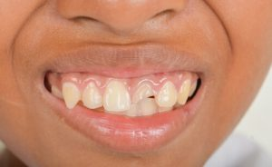 tooth abscess in children