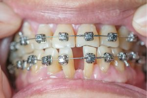 damon braces cost