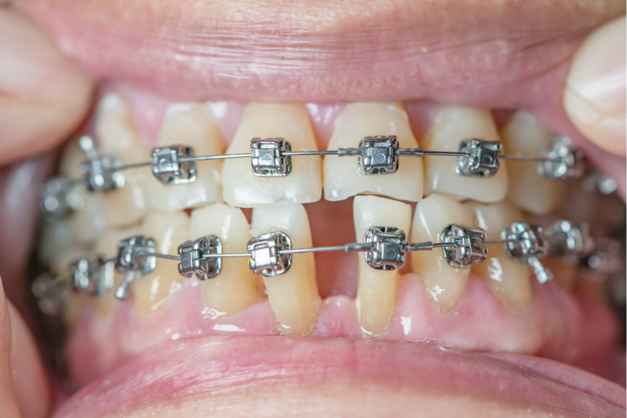 damon braces cost
