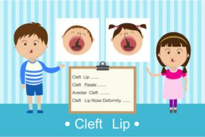 different types of cleft including cleft nose deformity
