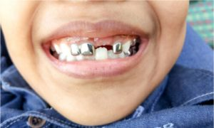 a kid with stainless steel crowns