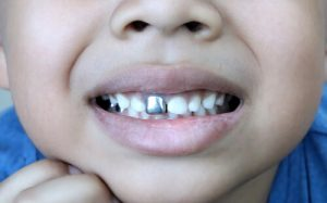 kid with silver front tooth