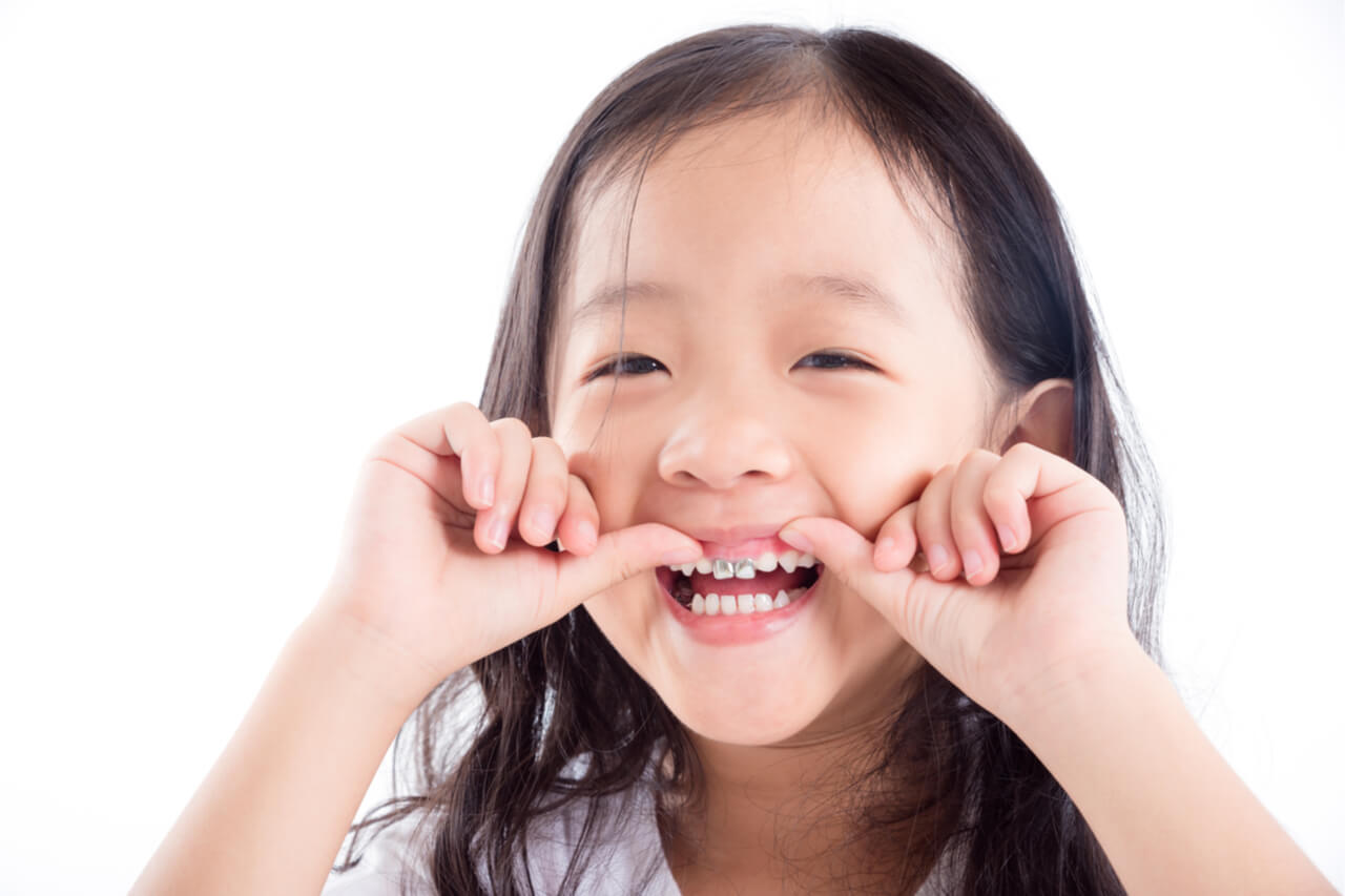 kids with silver teeth